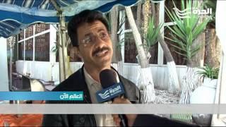 الفساد في اليمن يطال الاغاثة والمساعدات الانسانية