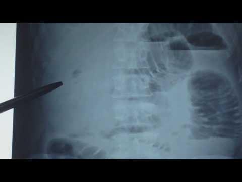Nhận định hơi trong hay ngoài ống tiêu hóa trên x quang bụng