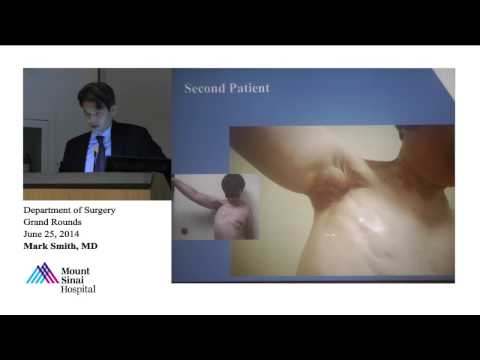 Vascularized Lymph Node Transfer: An Evolving Treatment For Post-Surgical Lymphedema
