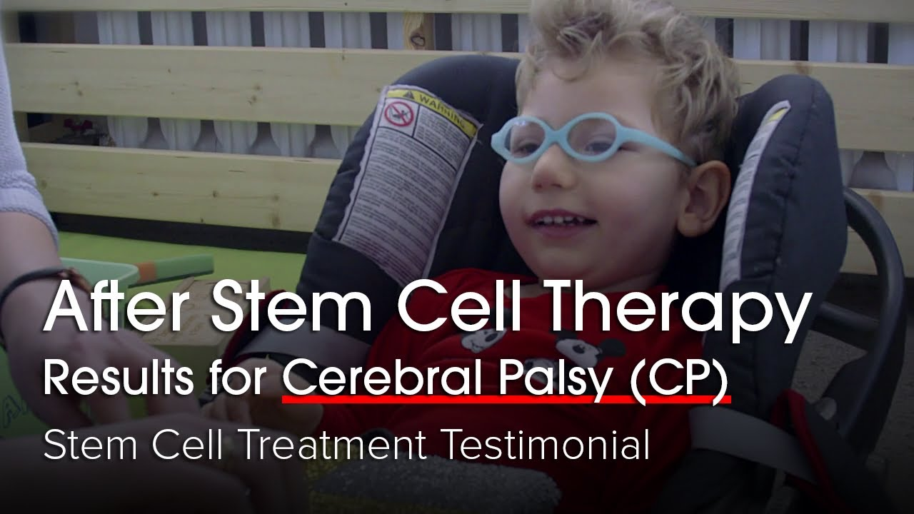 After Stem Cell Therapy results for Cerebral Palsy (CP) | Stem Cell Treatment Testimonial