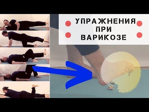 Стоп Варикоз. Упражнения при варикозе.  Урок №3
