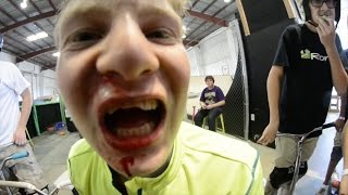 EPIC FACEPLANT !!! BROKEN TEETH !!!