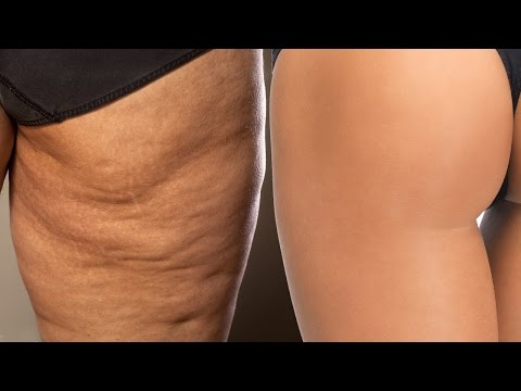 3 Exercises For Cellulite