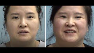 타 병원에서 쌍꺼풀재수술 절대 불가받은 그녀의 6개월 후의 모습