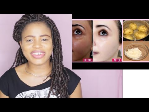 PERMANENT SKIN WHITENING WITH BOIL POTATOES | GET MILKY WHITE SKIN (100% Result)