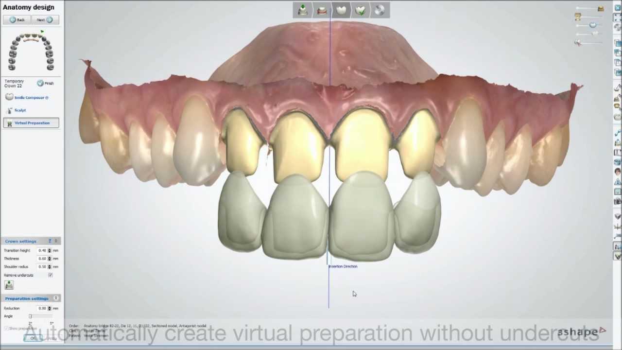 Dental System 2013 Trios Color Digital Temporary Youtube