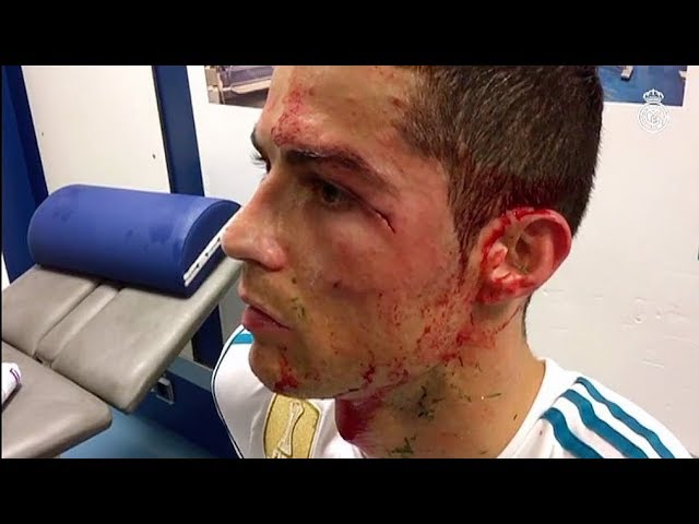 El Real Madrid muestra la brecha de Cristiano Ronaldo