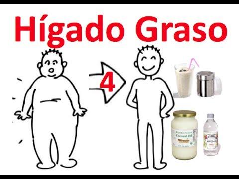 Causa y Tratamiento del Hígado graso - YouTube