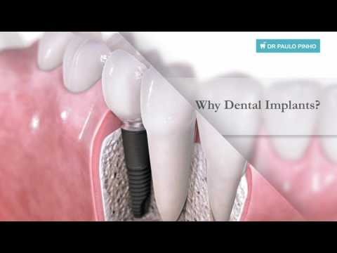 Dental Implants In Sydney - Dr Paulo Pinho