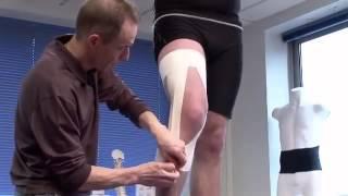 Strapping du genou