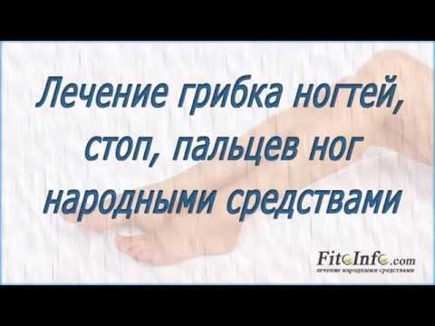 Грибок ногтей на ногах лечение. Грибок стопы и пальцев.