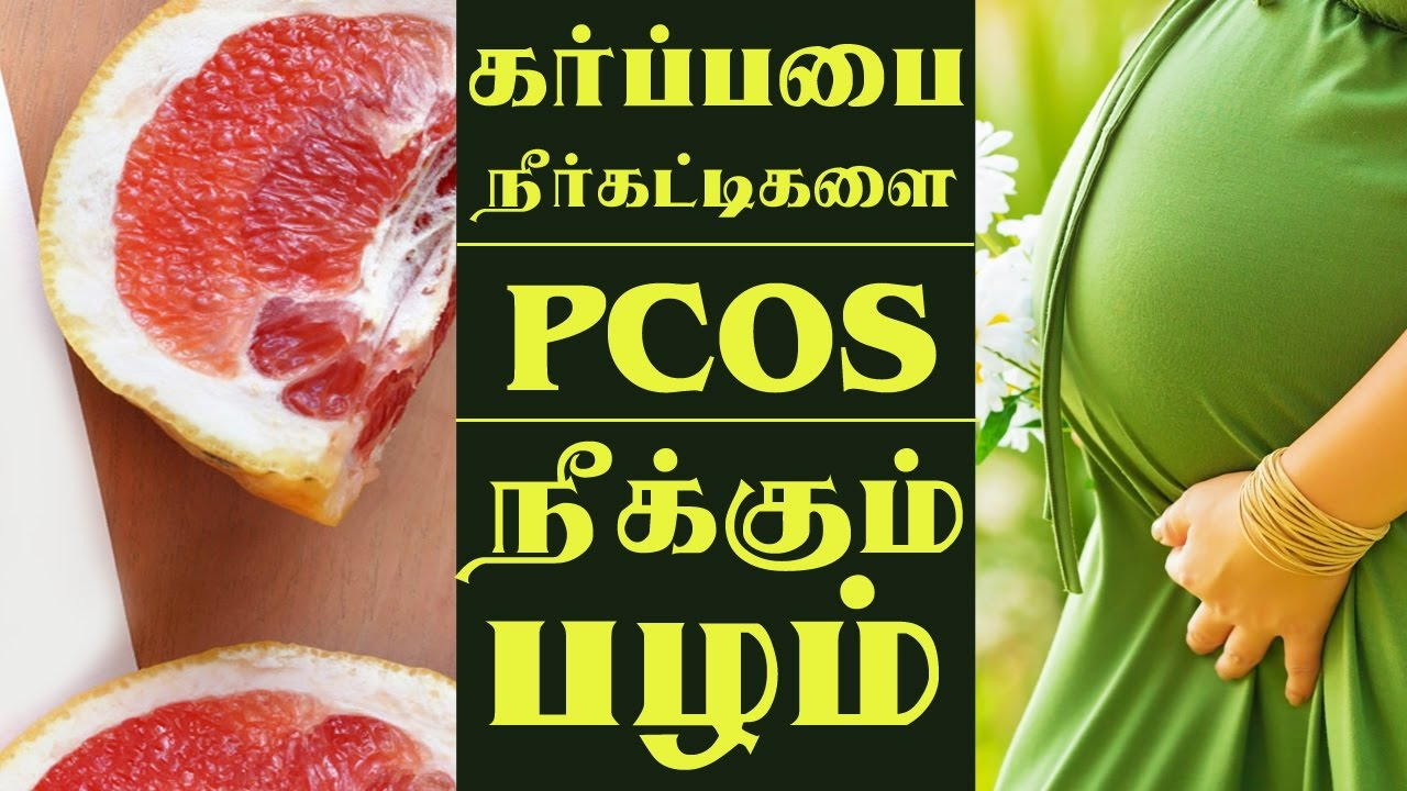 Pcos Explained In Tamil Mic I Patient Education By Medical