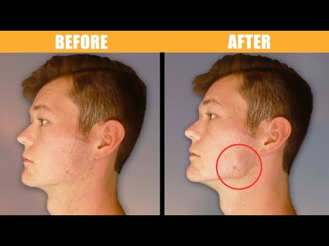 EXERCISES and POSTURE for Defined Jawline (4 Easy Steps)