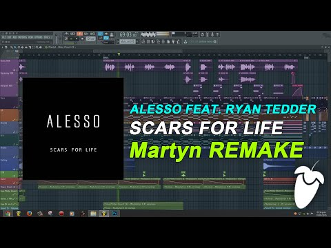 Alesso Feat. Ryan Tedder - Scars For Life (Original Mix) (FL Studio Remake + FLP)