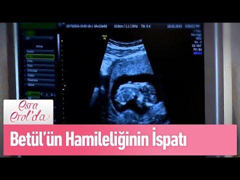 Betül'ün hamileliğinin ispatı - Esra Erol'da 19 Şubat 2019