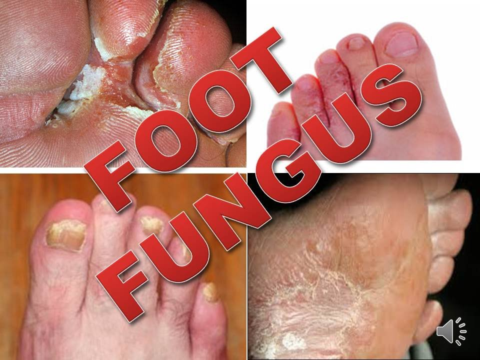 Natural Herbal Treatment For Foot Fungus Athletes Foot - YouTube