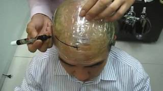 How to make a template for Non-Surgical Hair Replacement Systems,