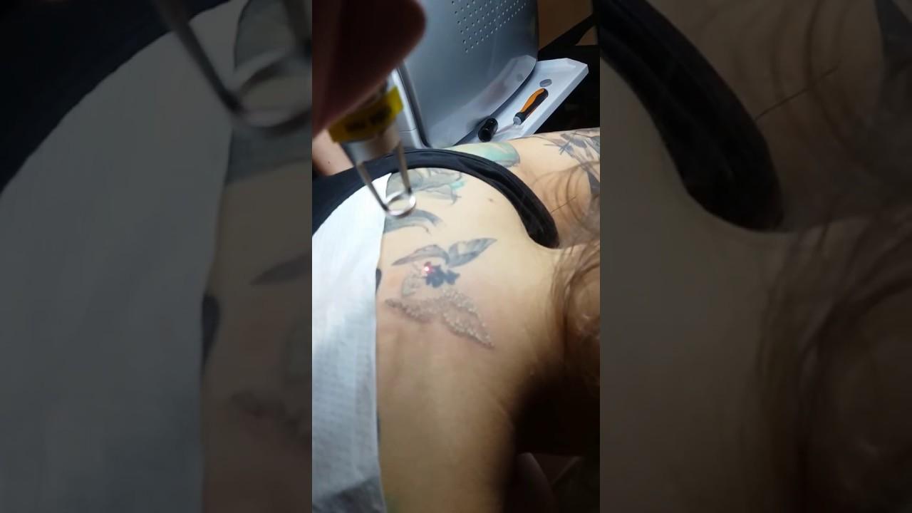 Laserowe Usuwanie Tatuażu I Makijażu Permanentnego Yasumi