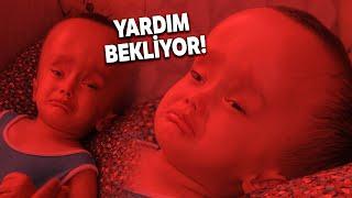 Hidransefali Hastası Minik Sercan'ın Hayatı 240 Bin TL'ye Bağlı