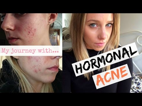 hormonal-acne-+-the-pill:-curing-my-hormonal-acne-naturally