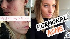 hqdefault - Celebrity Recommended Acne Remedies Yasmin Helps