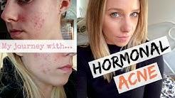 hqdefault - Sprintec Making Acne Worse