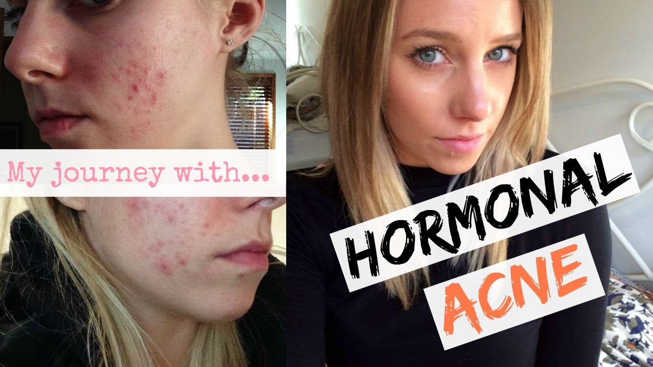 Hormonal Acne Treatments Natural Solutions In Sydney
