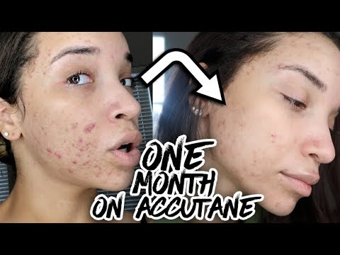 First Month on Accutane - IT'S WORKING!!!   Acne Update #4