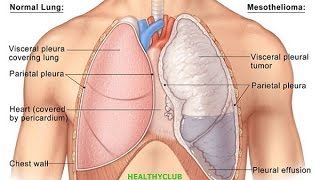 How Long Can I Live With Mesothelioma?