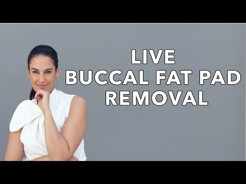 Buccal Fat Removal Surgery + Before and After Photos | Nazarian Plastic Surgery thumbnail