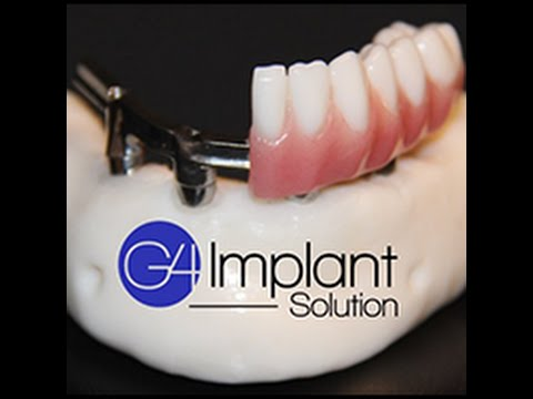 Jarrett | Golpa G4 Implant Solution | Patient Testimonial