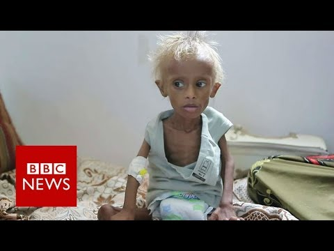 Yemen war: The boy who shocked ther world - BBC News