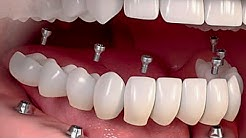 The Cost Of Dental Implants Might Surprise You 2018