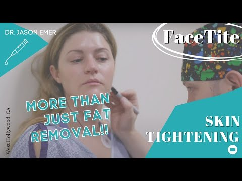 FaceTite Procedure | Minimally Invasive Mini Facelift & Necklift