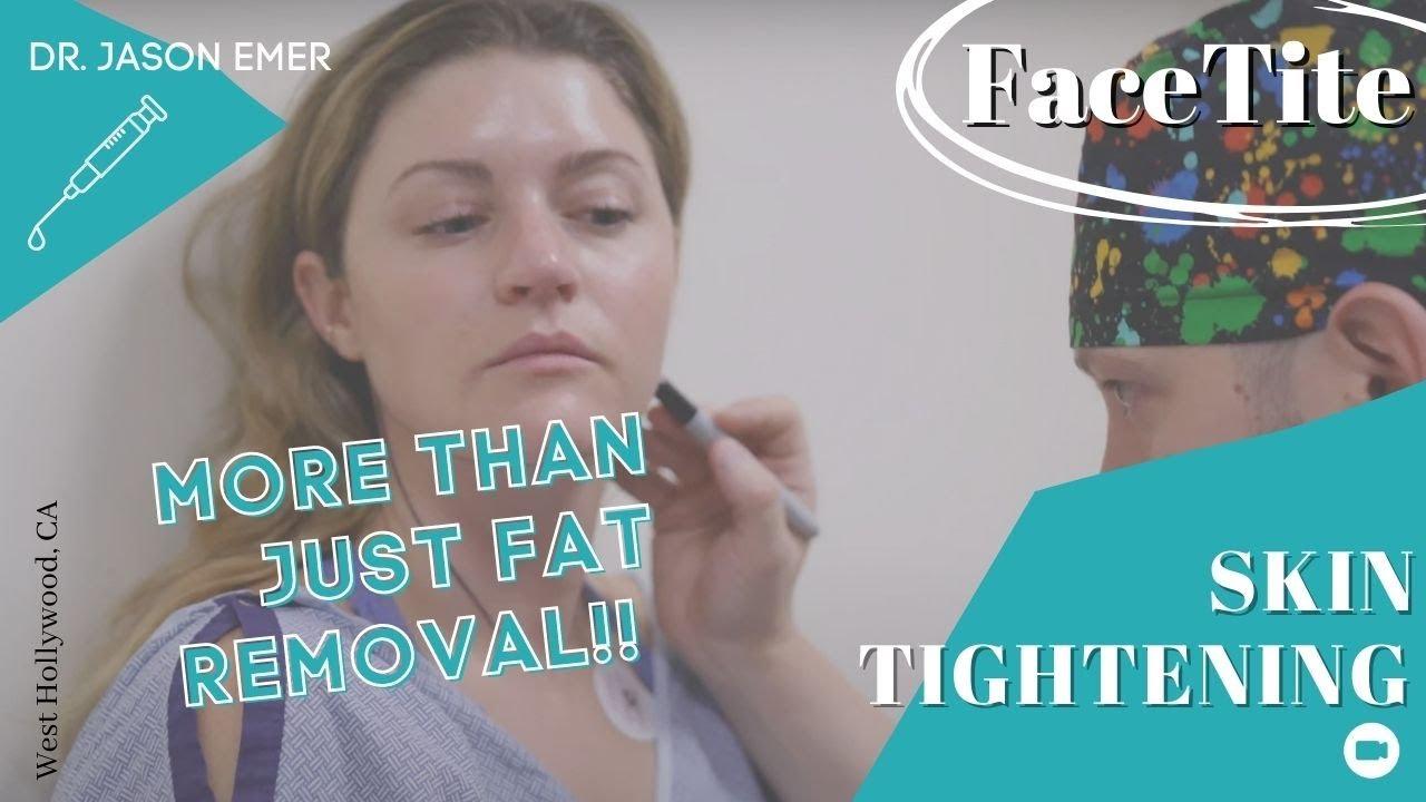 FaceTite Procedure | Minimally Invasive Mini Facelift