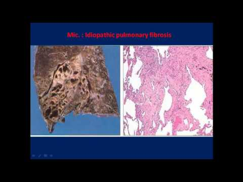 pathology - dr. dhayma -- Restrictive lung diseases (2)