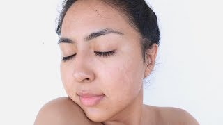 OSkin Med Spa || MY FIRST FACIAL WITH ACNE SCARING