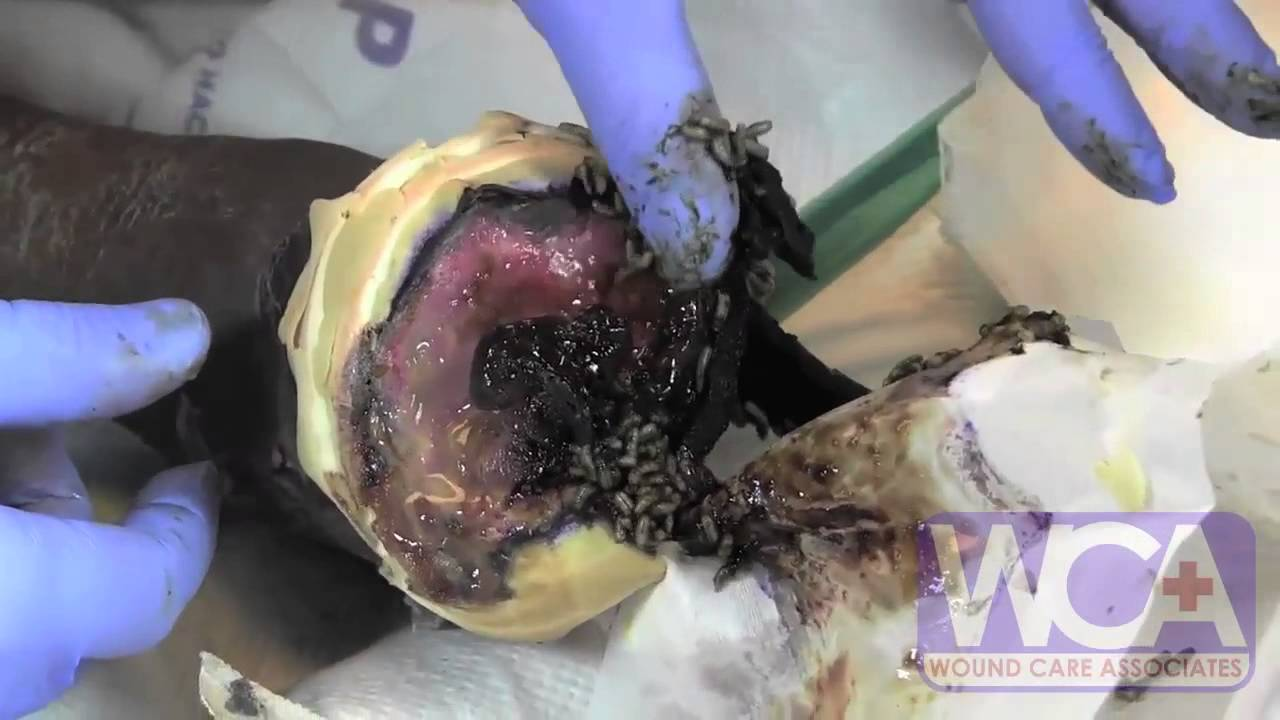 Maggot Therapy for Wounds - Wound Medicine Medcentris