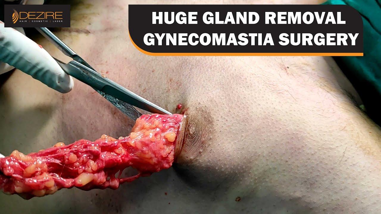 Gynecomastia Surgery !! Huge Gland Removal !! Symmetrical Shape @Dezire Clinic