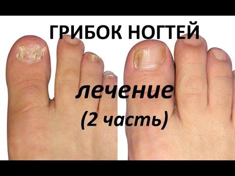 Видео Грибок ногтей и гаснет