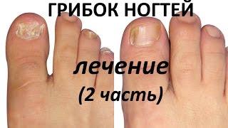 Как лечить грибок ногтей. Диета, устраняющая грибок ногтей навсегда (2 часть)