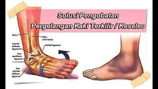 Pertolongan Pertama Cedera Pergelangan Kaki (Ankle Sprain).