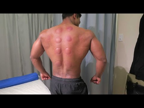 Chinese Cupping Therapy - Does It Hurt?