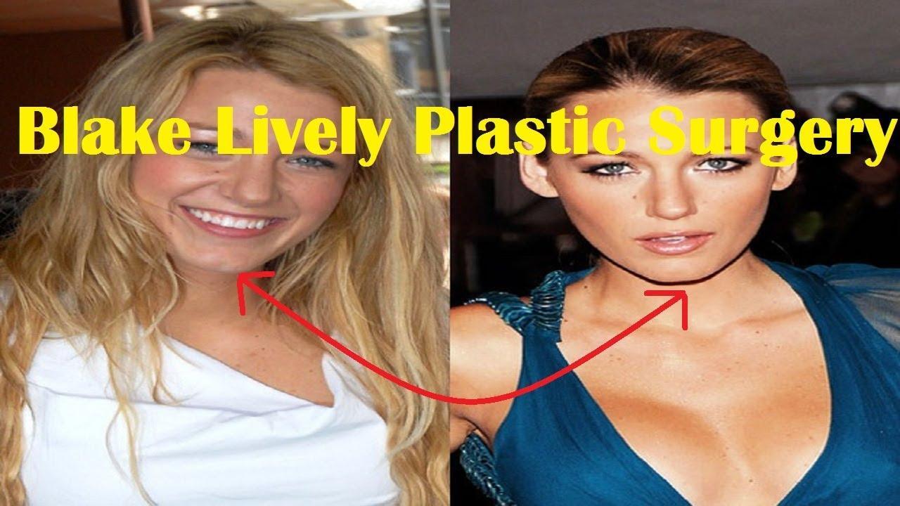 Has blake lively had plastic surgery
