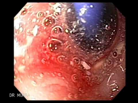 Endoscopy of Esophagea...