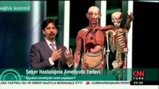 Şeker Hastalığına Ameliyatlı Tedavi  CNN Turk Doç Dr Alper Çelik