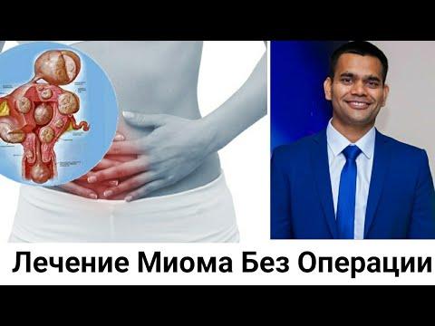 Лечение Миома Без Операции.