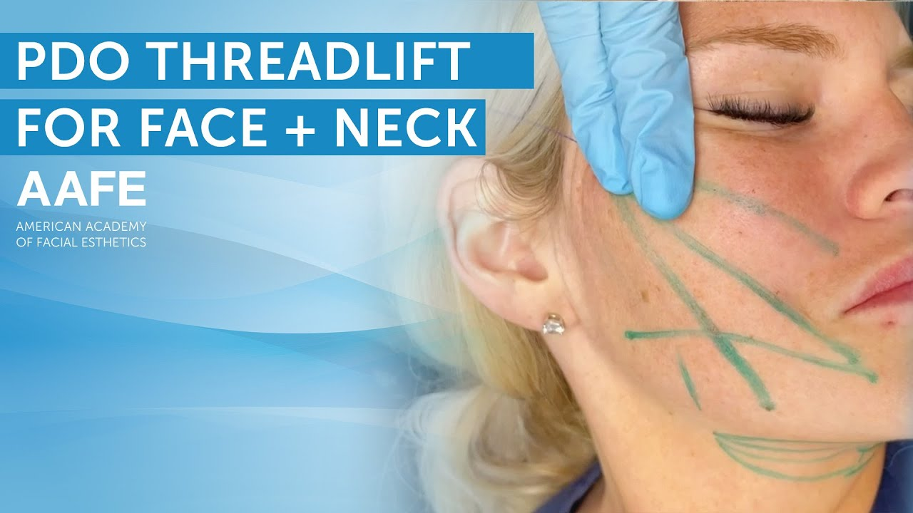 Non-Surgical Face and Neck Lift with PDO Lifting Threads | AAFE