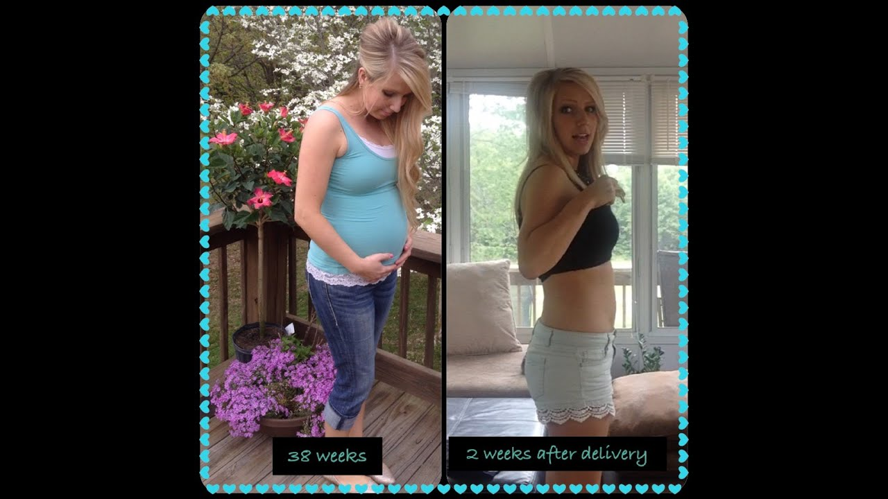 How to speed up weight loss after c section picture 5