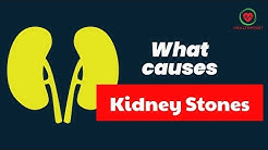 Kidney stones Symptoms - Causes, Pictures Signs and Symptoms of Kidney Stones - Renal Calculus